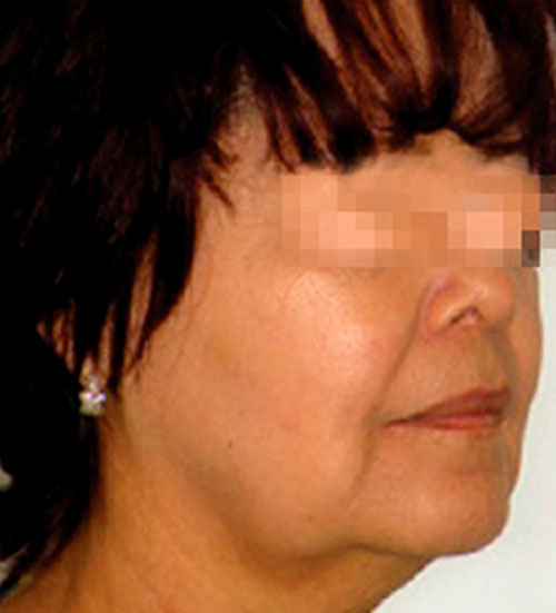 Facial radiofrequency