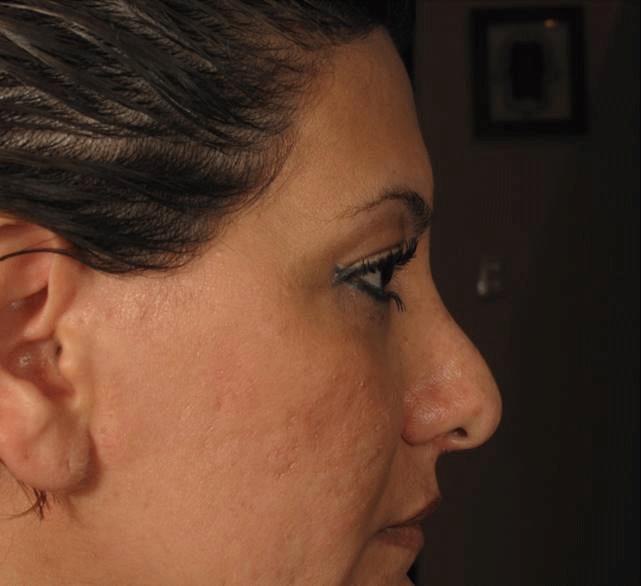 Rinoplastía estética y funcional