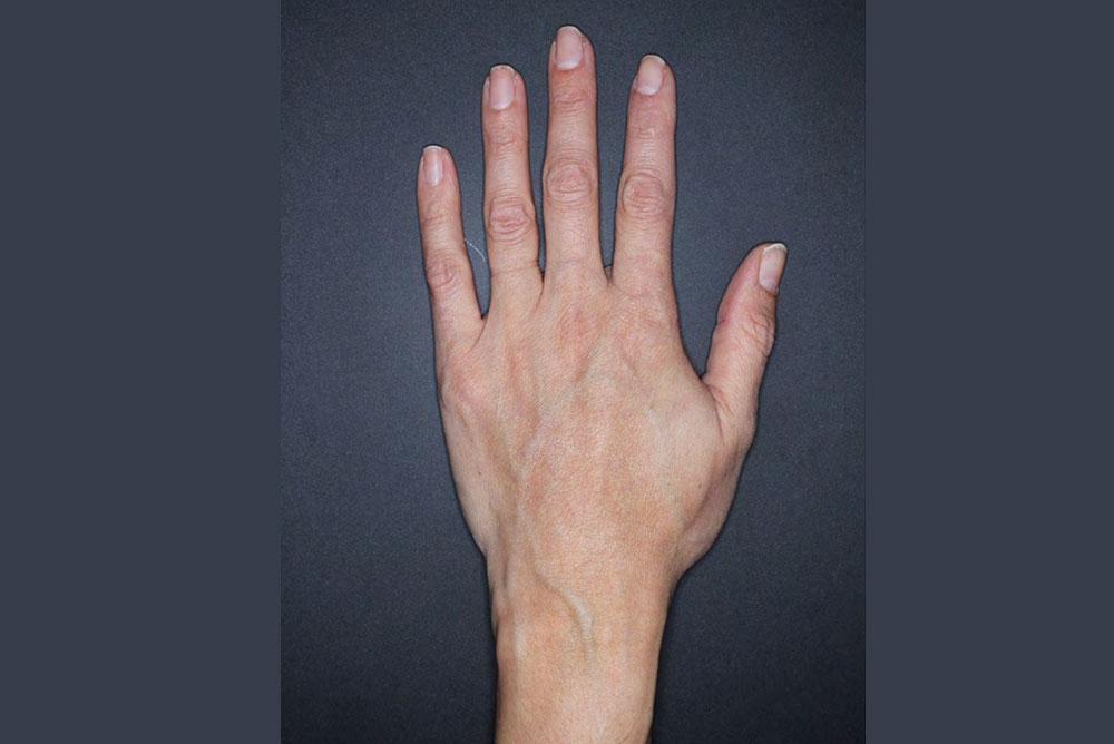 Rejuvenecimiento de manos