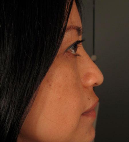 antes-Rinoplastia-estetica-y-funcional-dr-rosengaus-