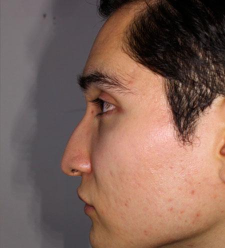 antes-Rinoplastia-estetica-y-funcional-dr_rosengaus-