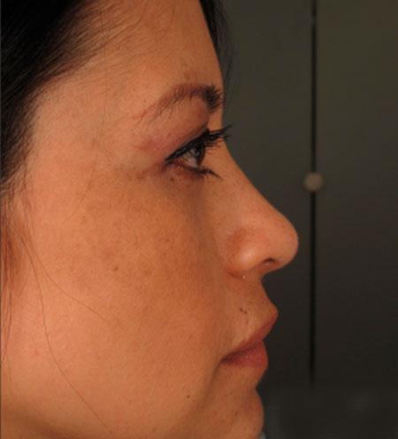 despues-Rinoplastia-estetica-y-funcional-dr-rosengaus-