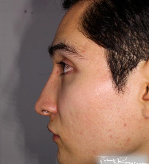 despues-Rinoplastia-estetica-y-funcional-dr_rosengaus-